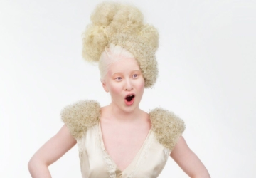 "Xueli foi abandonada pelos pais por ser albina. Agora é modelo na ""Vogue"""